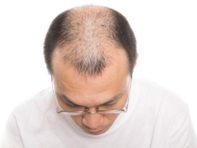 薄毛を防ぐ食べ物と薄毛診断の簡単な方法